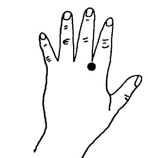 Звездочка при остеохондрозе поясничного отдела